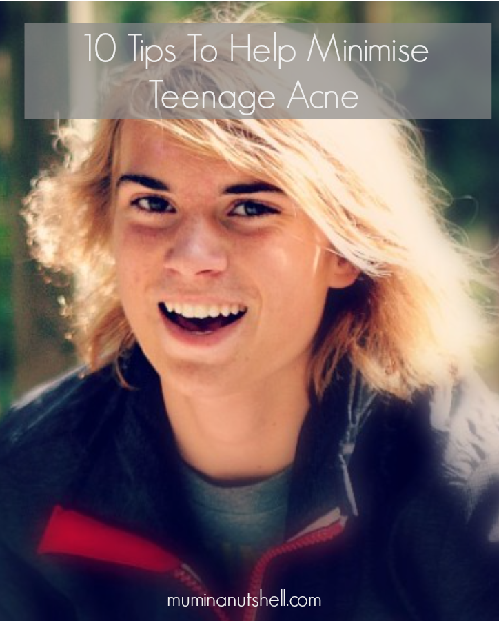 10 Tips To Help Your Teenager Minimise Acne