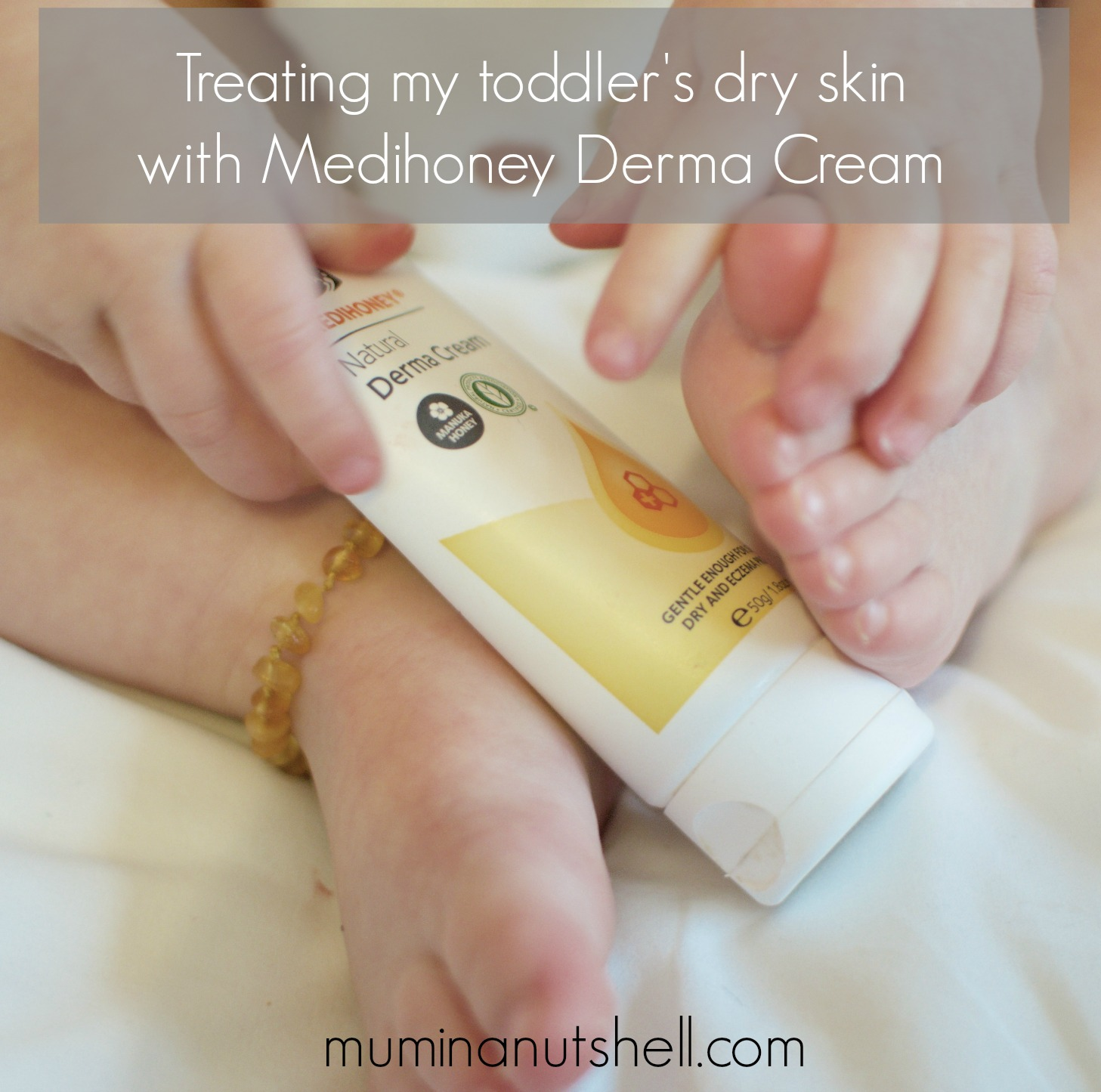 treating my toddler's dry patches with medihoney